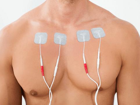 Elektrošoky mohou být do svalů přenášeny pomocí elektrod, a to prostřednictvím drátů, které vedou do elektrostimulačního přístroje.